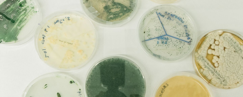 Microbe samples sit in petri dishes at a Cemvita laboratory. Image: Cemvita factory